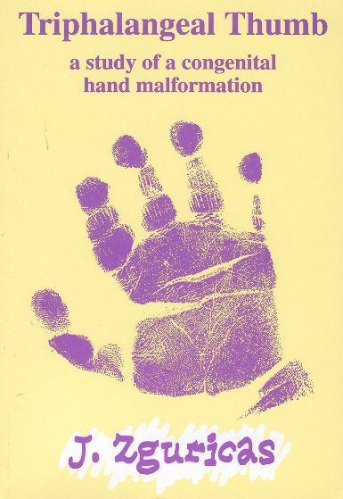 Congenital Hand And Arm Differences: RePub, Erasmus University Repository: Triphalangeal Thump
